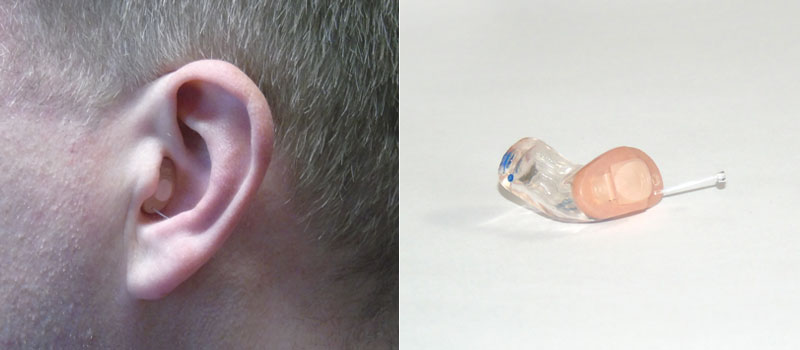 Mini-In-dem-Oh-Hörsystem