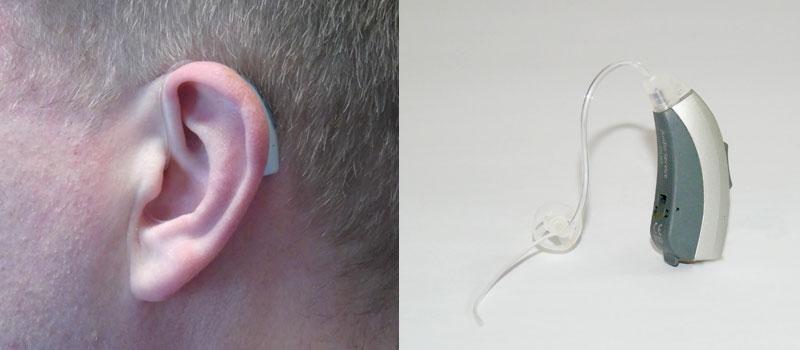Hinter-dem-Ohr Hörsystem