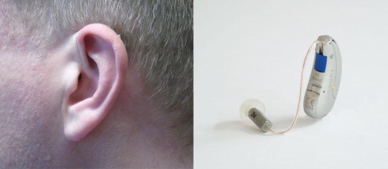 RIC-Hörsystem